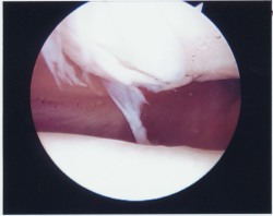 Rough Cartilage Behind The Kneecap